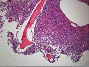 Figure 1:  Low power slide which demonstrates hypercellular bone marrow comprised predominately of atypical  promyelocytes.